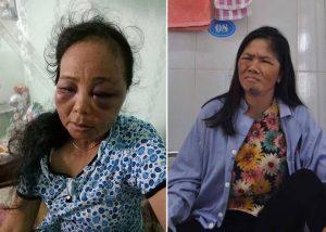 Bà Phúc và chị Bảy bị người dân bắt giữ và hành hung bị thương nặng