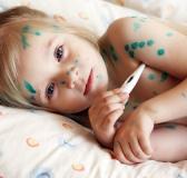 Nguyên nhân dẫn đến bệnh Thủy đậu ở trẻ em