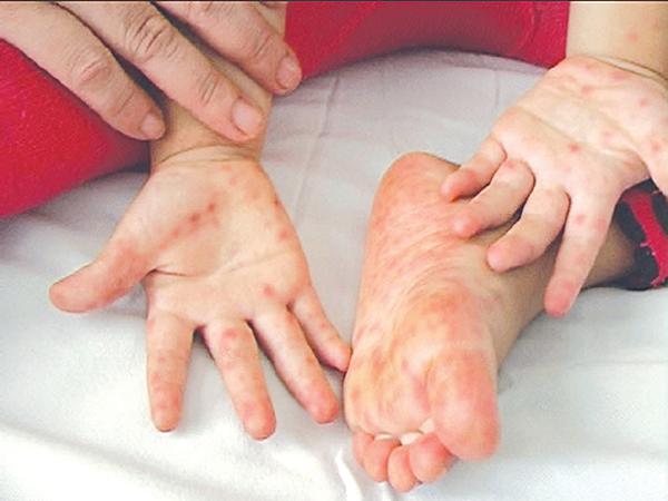 Bệnh chân tay miệng ở trẻ em nguyên nhân nào gây nên?
