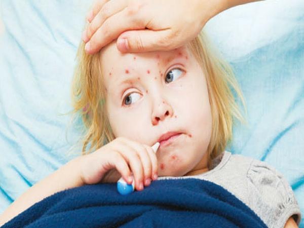 Bệnh sởi ở trẻ em có nguy hiểm không?
