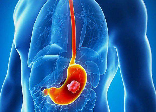Ung thư dạ dày do nguyên nhân nào gây nên?