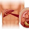 Ung thư gan xuất hiện do nguyên nhân nào?