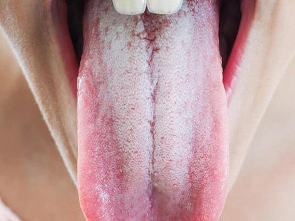 Hiện tượng lưỡi trắng