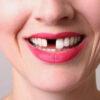 Mơ thấy rụng răng điềm báo gì? Đánh cặp số nào may mắn